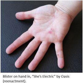 bad rock blister